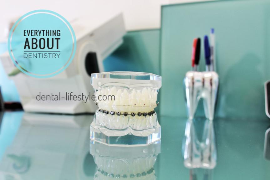 Όλα όσα θέλετε να μάθετε για την οδοντιατρική