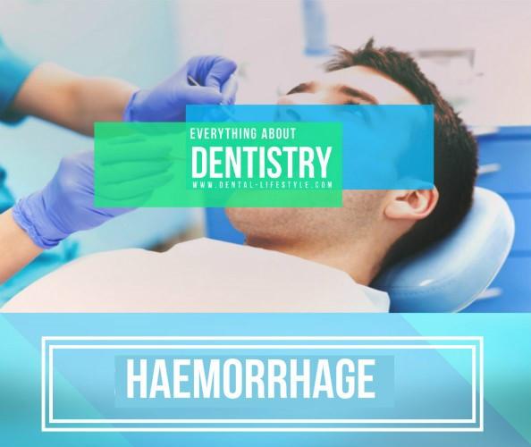 Αιμορραγία στο οδοντιατρείο-πώς να την σταματήσετε