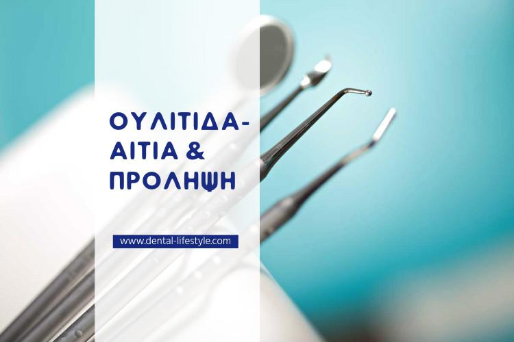 Ουλίτιδα-αίτια και πρόληψη