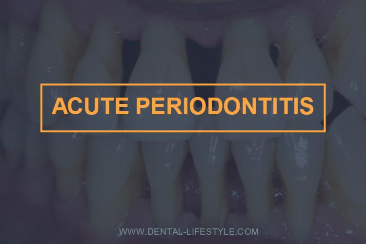 Acute periodontitis