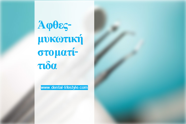 Άφθες-μυκωτική στοματίτιδα