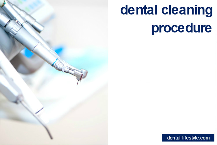 Dental cleaning-procedure
