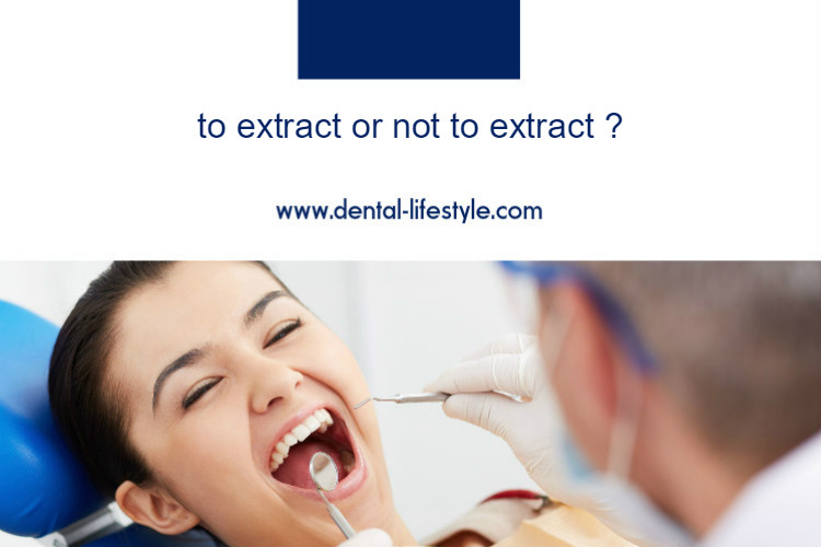 To extract or not to extract ?