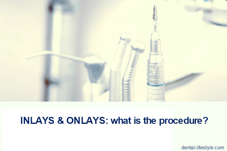 The inlays and onlays are not directly made in the patient's mouth like fillings but they should be made in the dental laboratory. For this reason, the installation requires at least two visits to the dentist.