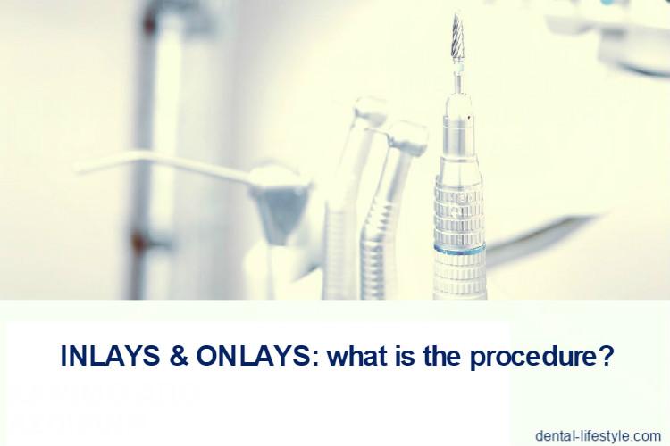 inlays-onlays: what's the procedure?