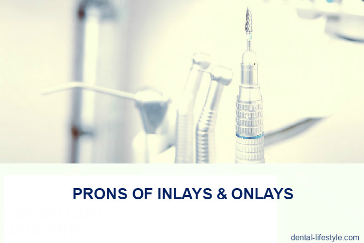 Prons of inlays & onlays