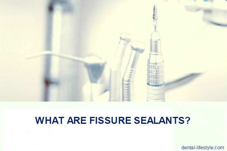 What are fissure sealants ?
