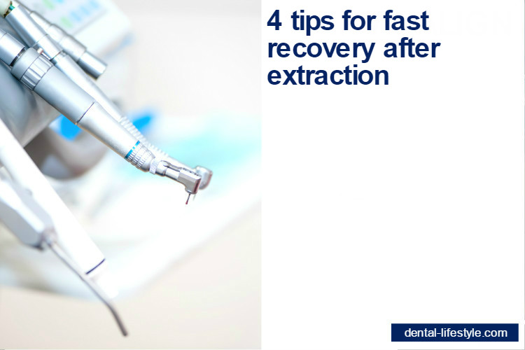 4 tips for fast recovery after extraction
