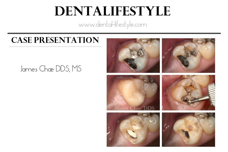 Case presentation by Dr James Chae DDS, MS.