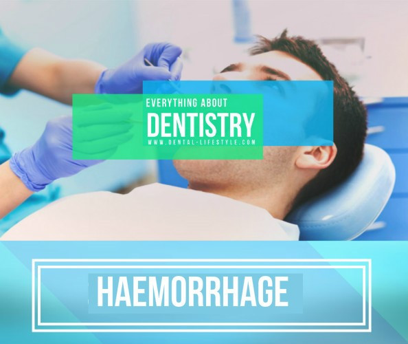 Haemorrhage in the dental clinic happens quite often and it usually is not a severe episode. But there are times that it could get out of hand so in this presentation you can find what you need.