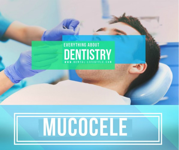 What is a mucocele? Why and how does it appear? What are the signs and symptoms? Is there treatment available? Is it a dangerous condition?