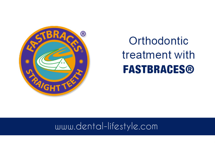 Orthodontic treatment with FASTBRACES ® system