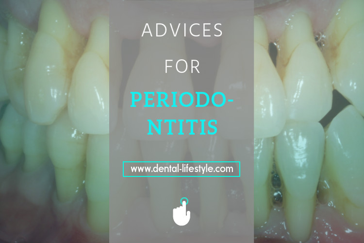 Periodontal diseases-advices