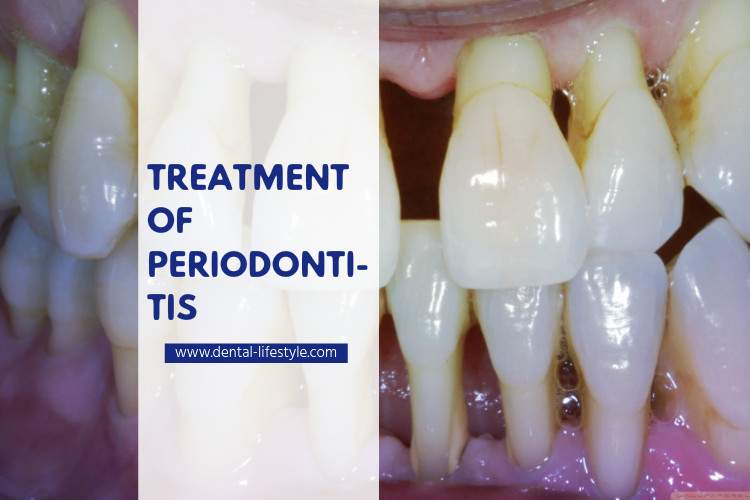 Periodontal disease-treatment