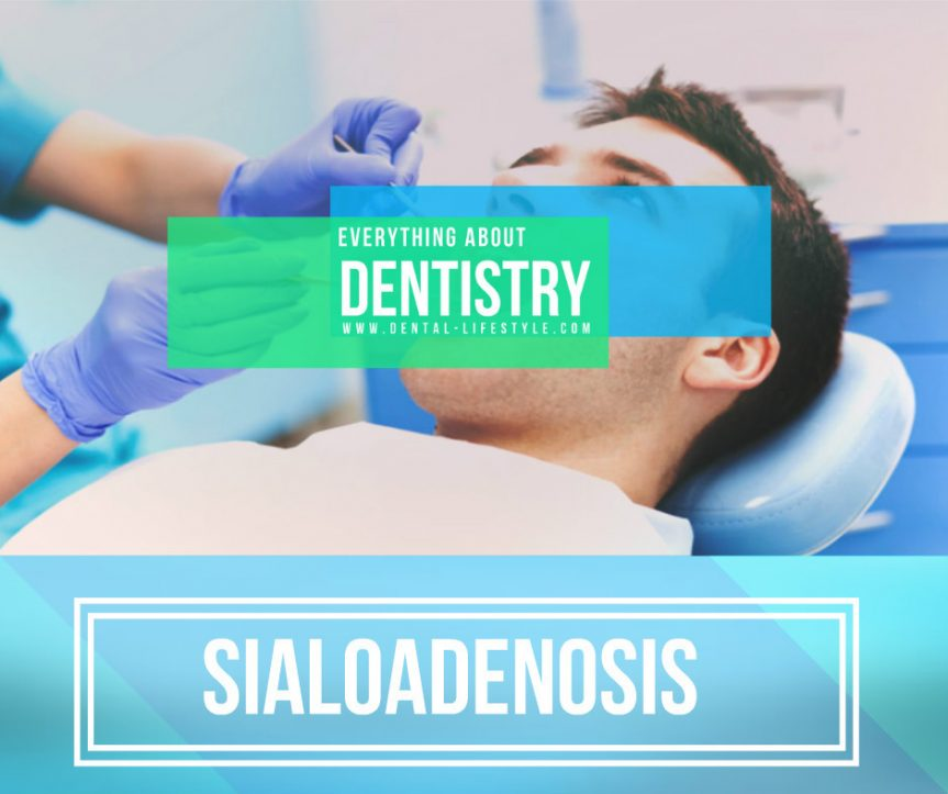 What is sialoadenosis? Why and how it occurs? How can you do to prevent it and how can you treat it?