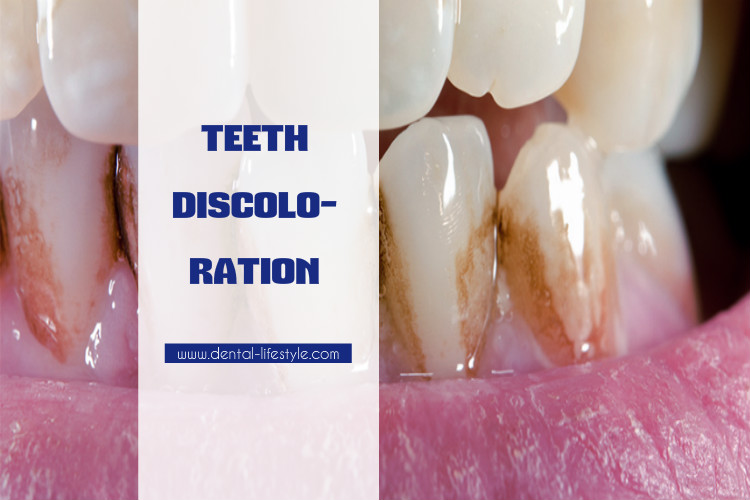 Teeth discoloration video