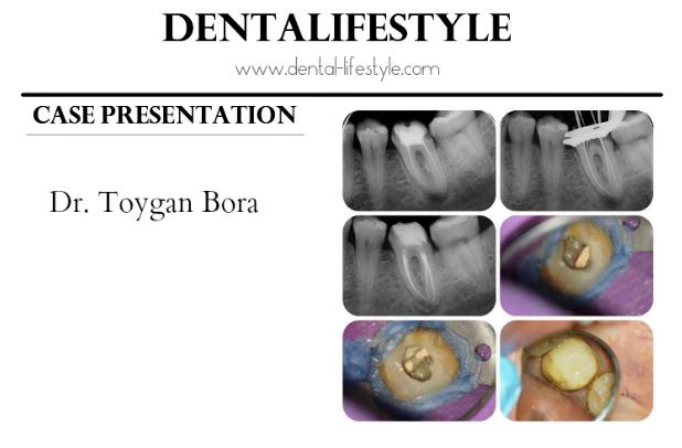 Ενδοδοντική θεραπεία-παρουσίαση περιστατικού από τον Dr. Toygan Bora