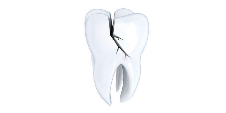 Κάταγμα δοντιού