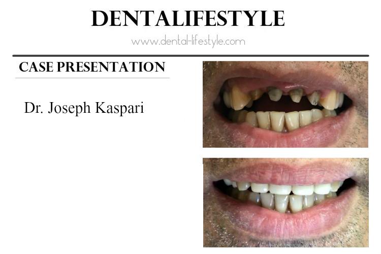 Περιγραφή περιστατικού από τον Dr. Joseph Kaspari DDS