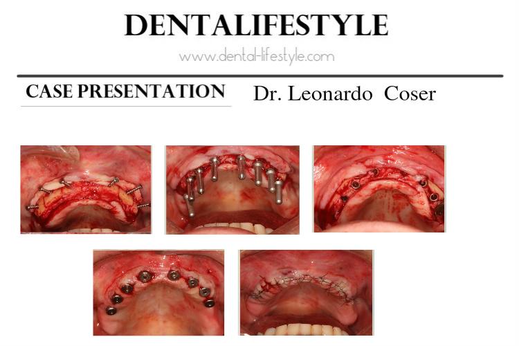 Παρουσίαση περιστατικού από τον Dr Leonardo Coser