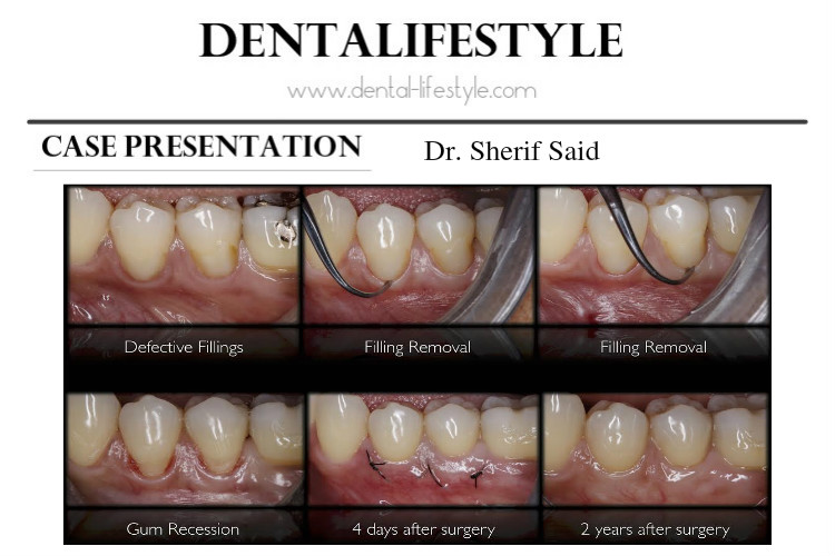 Periodontal case presentation by Dr. Sherif Said