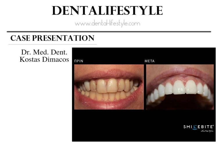 Αισθητική Οδοντιατρική-Παρουσίαση Περιστατικού Από Τον Dr. Kosta Dimaco