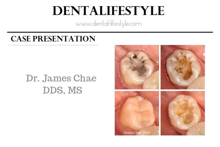 Η παρουσίαση αυτού του περιστατικού ανήκει στονDr. James Chae DDS, MS Συνεχίστε την ανάγνωση για να μάθετε τις λεπτομέρειες πίσω από την θεραπεία, όπως μας τις περιέγραψε ο ίδιος.