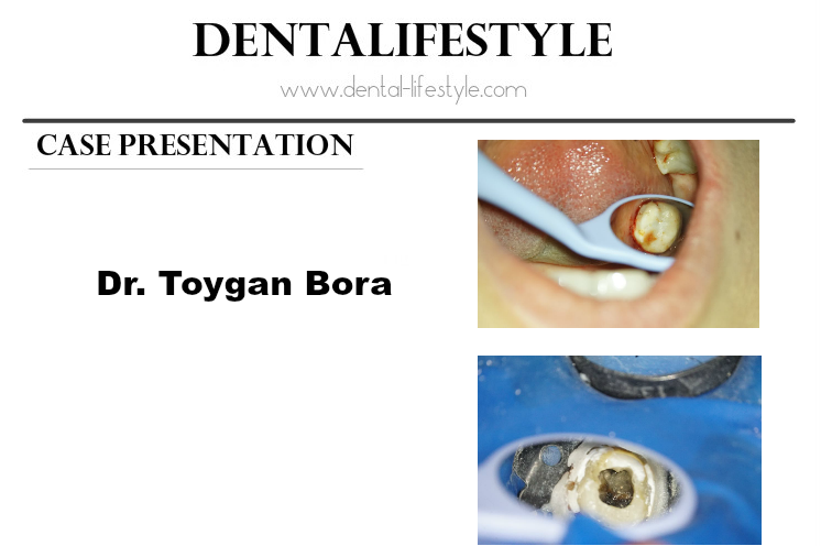 Endodontic Case Presentation by Dr. Toygan Bora