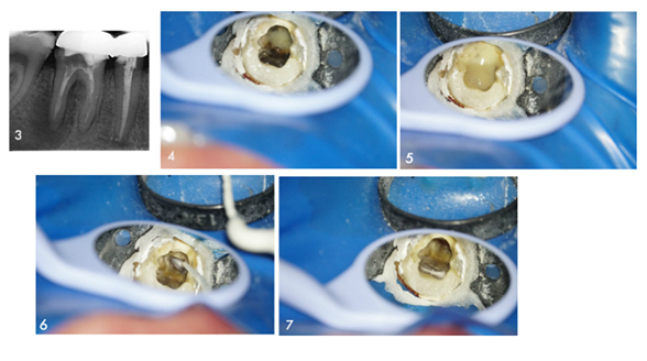 This endodonticcase belongs toDr.Toygan Bora  You can see the root canal treatment process with close-up photos.  Take a look and find out all about this case!